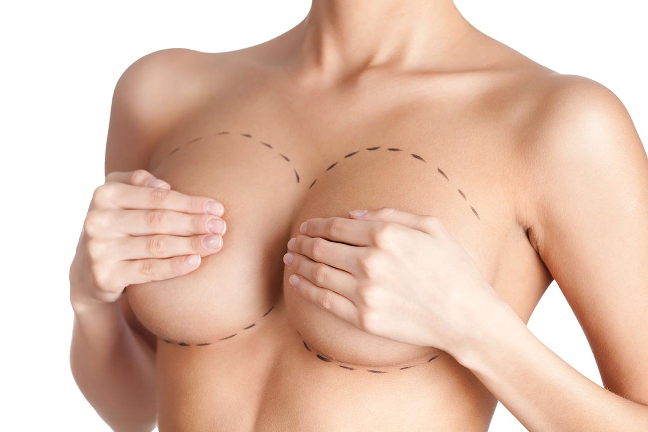 Güzel göğüsler ve plastik cerrahi